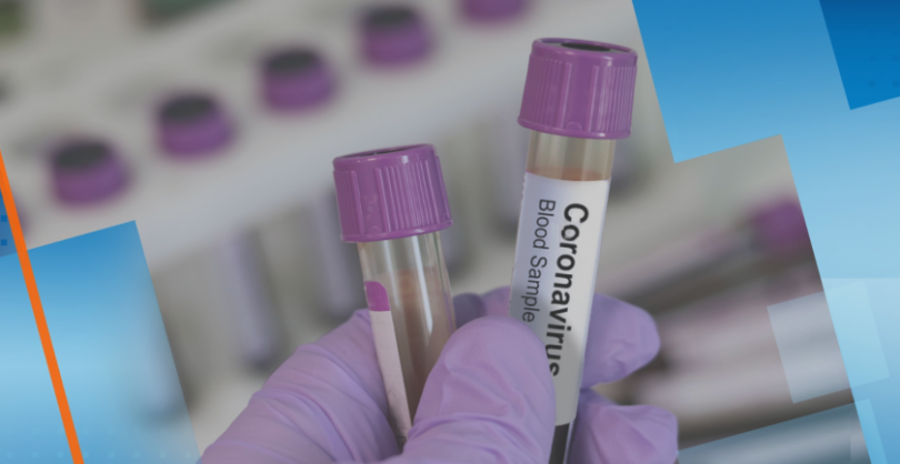 Coronavirus in Bulgaria: 95 new cases confirmed, total is at 8733
