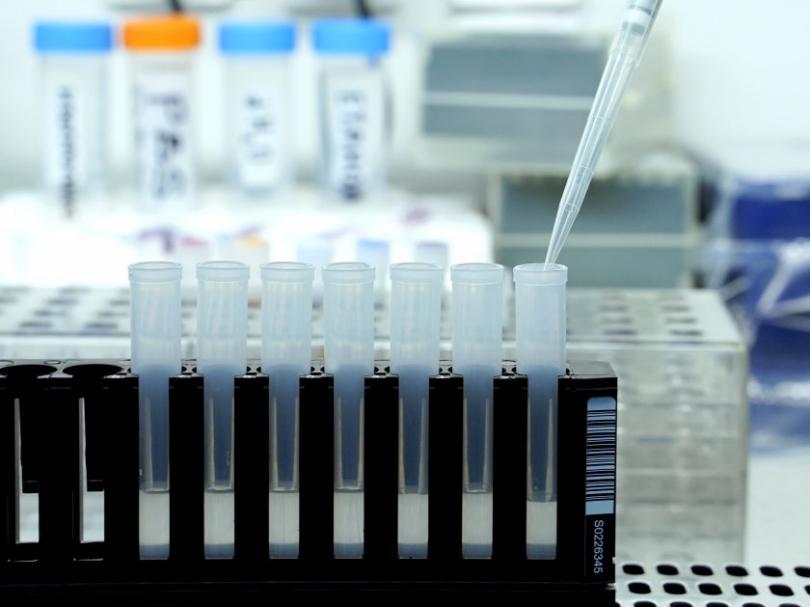 Coronavirus in Bulgaria: 577 confirmed cases, 23 deaths