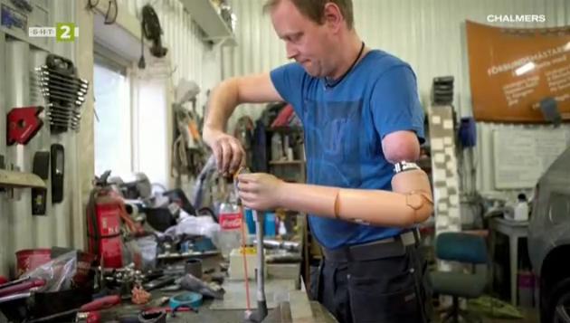 Шведски учени създадоха протеза с мисловен контрол