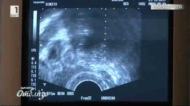Най-доброто от Здравето отблизо: Докога може да се отлага първата бременност?