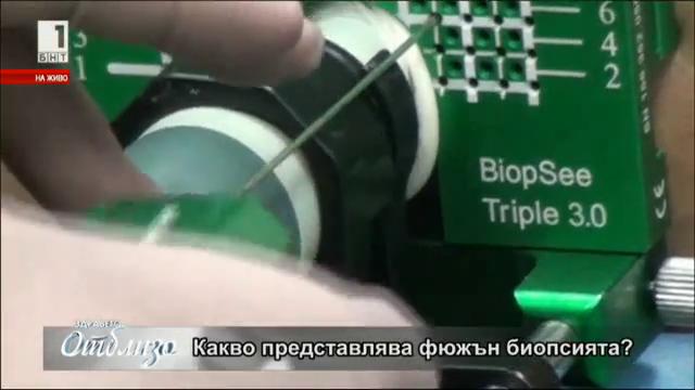 Революционна диагностика открива миниатюрни тумори на простата