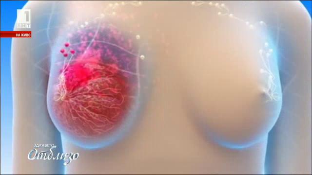 Д-р Тихомир Гемеджиев за рака на гърдата