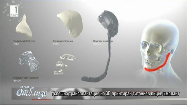 Първият в света 3D лицев имплант
