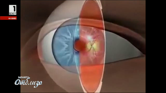 Катаракта - перде на окото