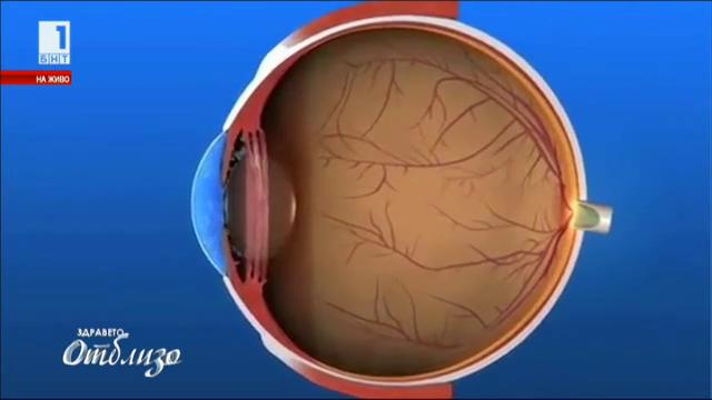 Новите методи за диагностика и лечение на глаукома