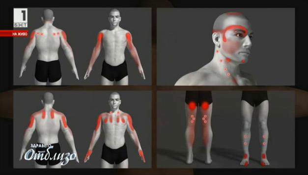 Тригерните точки – виновникът за болката в гърба и врата
