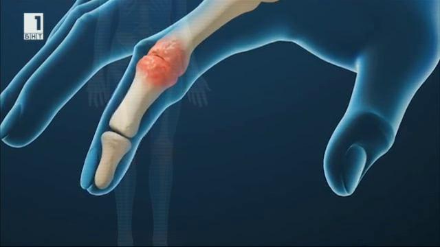 От настинката до артрита