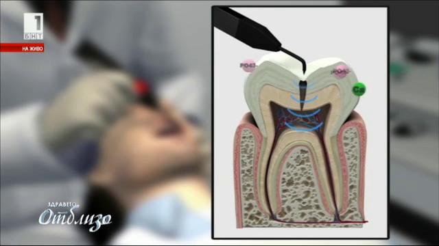 Последни тенденции в модерната стоматология