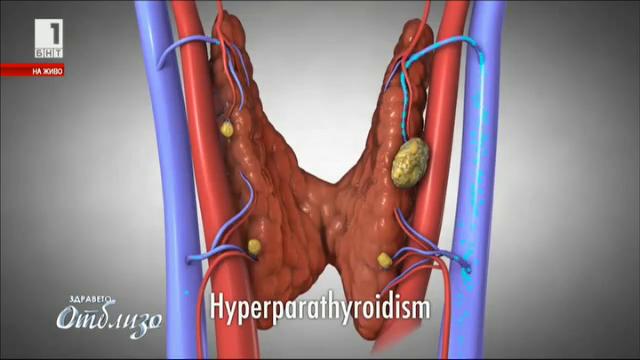 Национална кампания, посветена на заболяванията на щитовидната жлеза