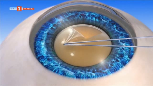 Нови аспекти в лечението на катаракта