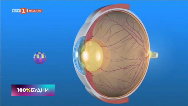 Как да победим катарактата