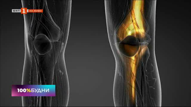 Симптоми и лечение на артрита