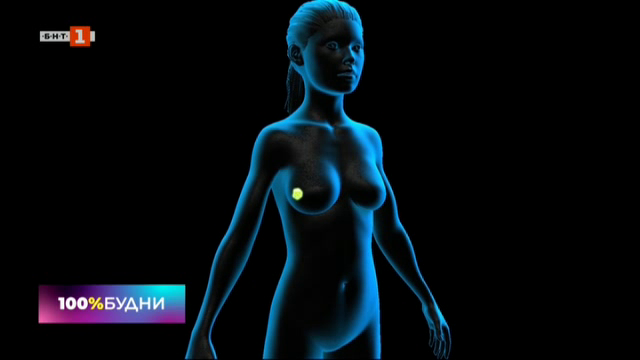 Диагностика на рака на гърдата – скрининг и профилактика