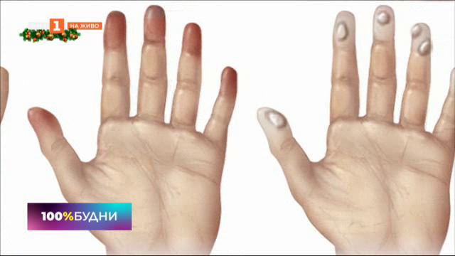 Как да предпазим кожата си от студа и замърсяването на въздуха