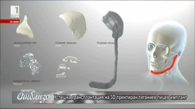 Присаждане на 3D принтиран титаниев лицев имплант. Доц. Янев и д-р Славков