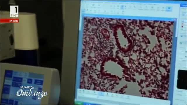 Плацентата – опасен биологичен отпадък или новата хранителна добавка на майките