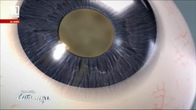 Какви са причините за появата на катаракта?