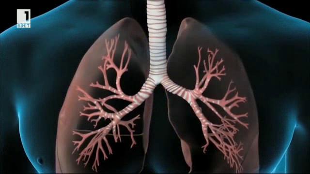 Най-тежките усложнения при пневмониите