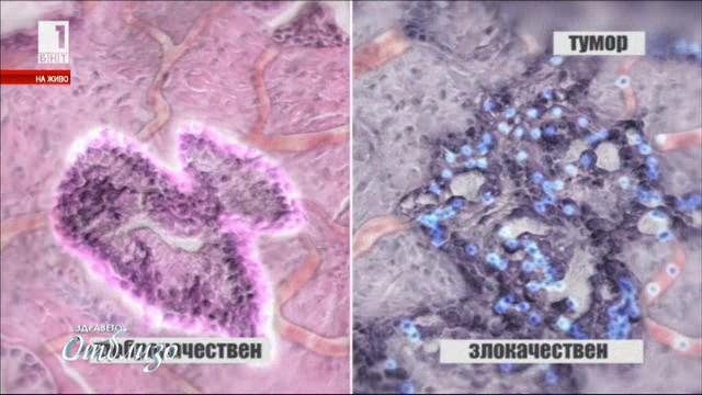 Модерни практики в лечението на карцином на простатата