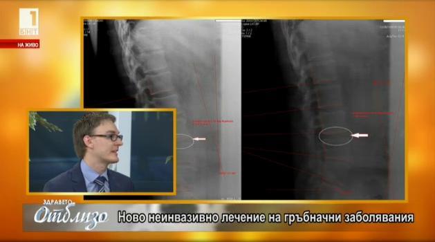 Ново неинвазивно лечение на гръбначни заболявания