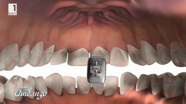 Най-доброто от Здравето отблизо: Лингвалните брекети - последният хит в ортодонтията