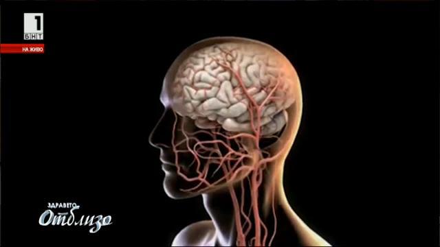 Как да разберем имаме ли аневризма в мозъка?