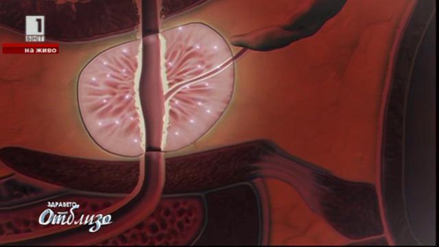 Ново поколение лазери помага при проблеми с простатата