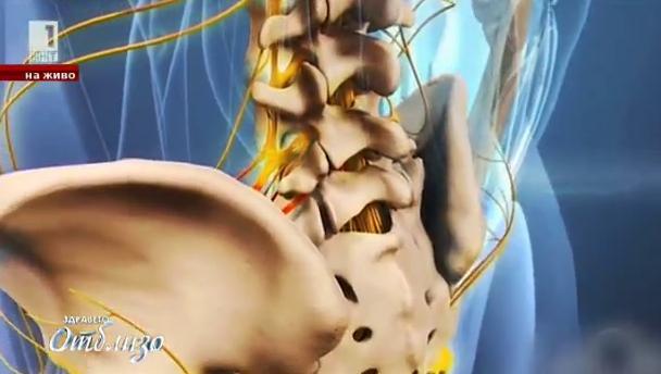 Нови методи за лечение на гръбначни заболявания