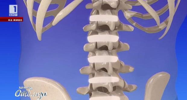 Иновативен имплант премахва дископатията