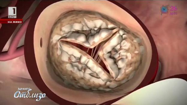 Методът ТАВИ или Транскатетърно имплантиране на аортна клапа