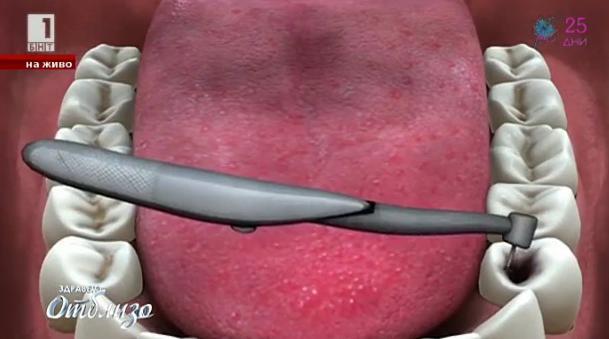 Зъбите ще могат да се лекуват сами