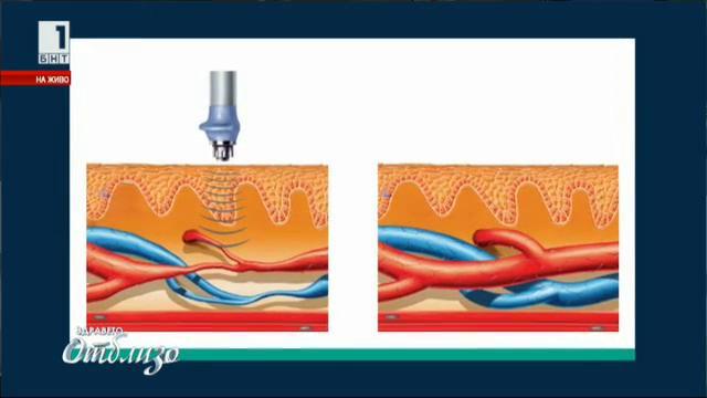 Иновативна физиотерапия лекува сексуални смущения при мъжете